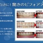 歯が白くなるのは本当!歯に貼るシールで白くなるのか体験した