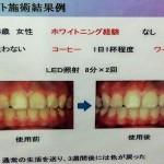 歯の黄ばみ!歯を白くするホワイトニングを体験し効果を検証